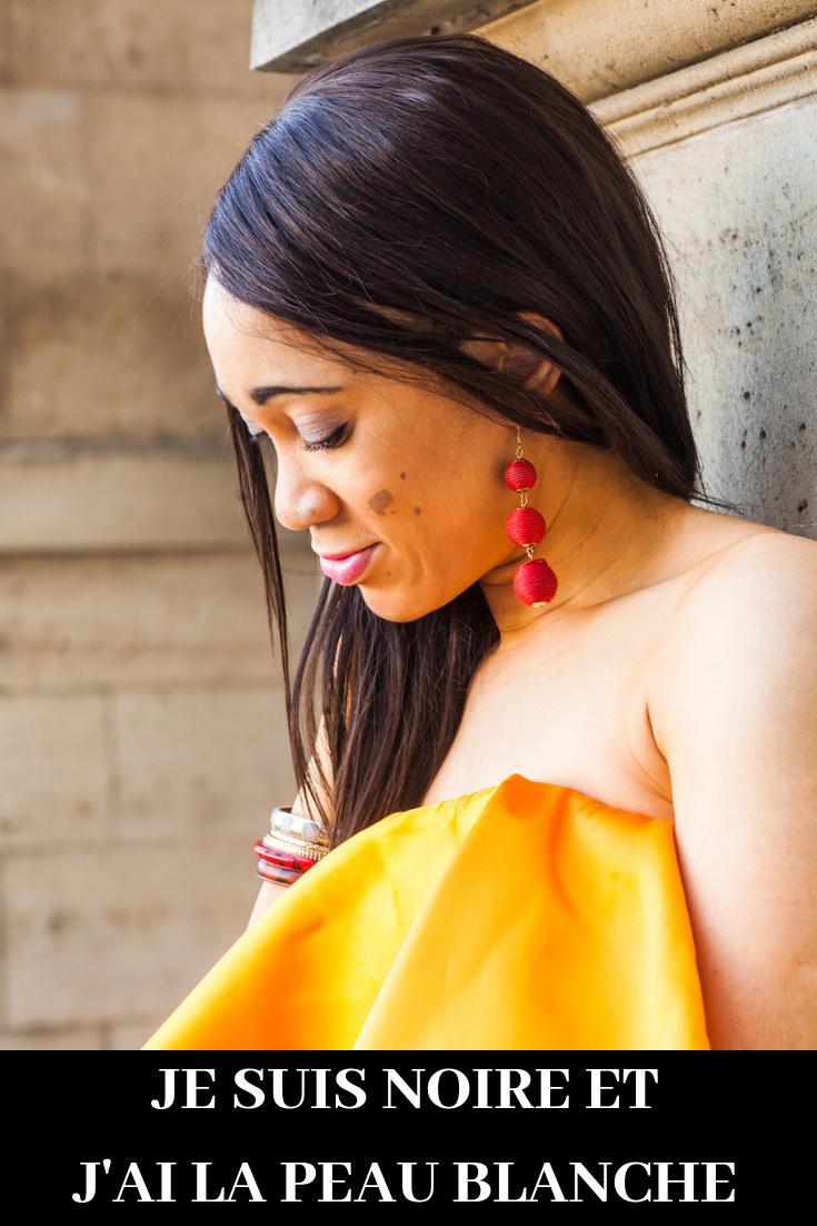 vitiligo girl noire à la peau blanche